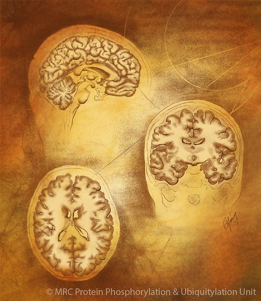 Brain cross-sections