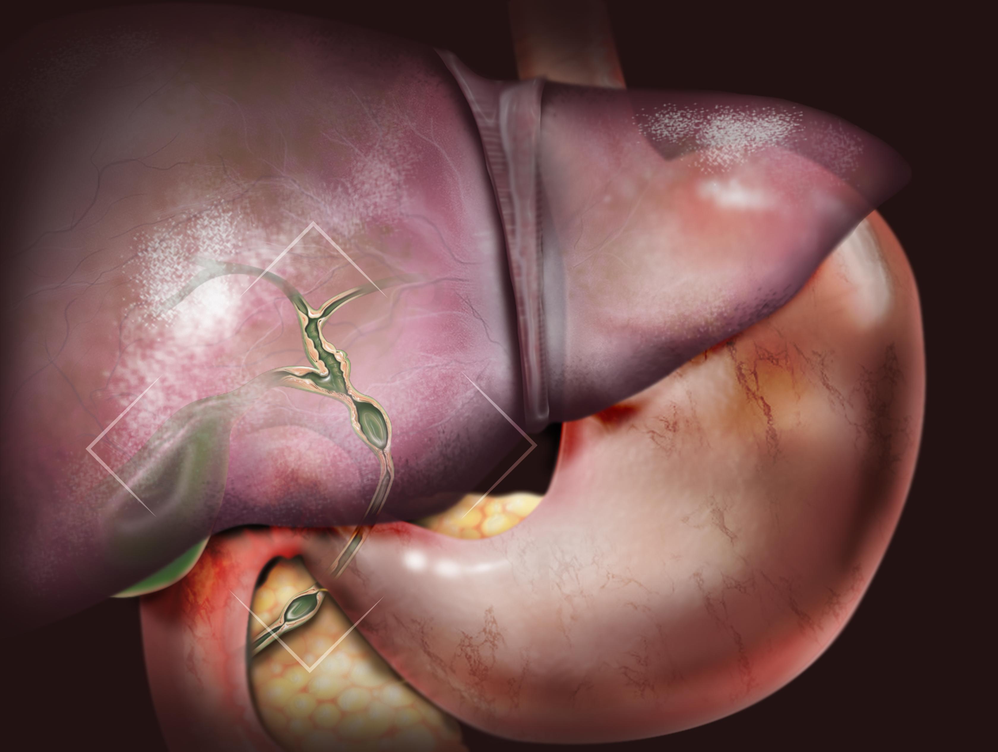 hepato disease
